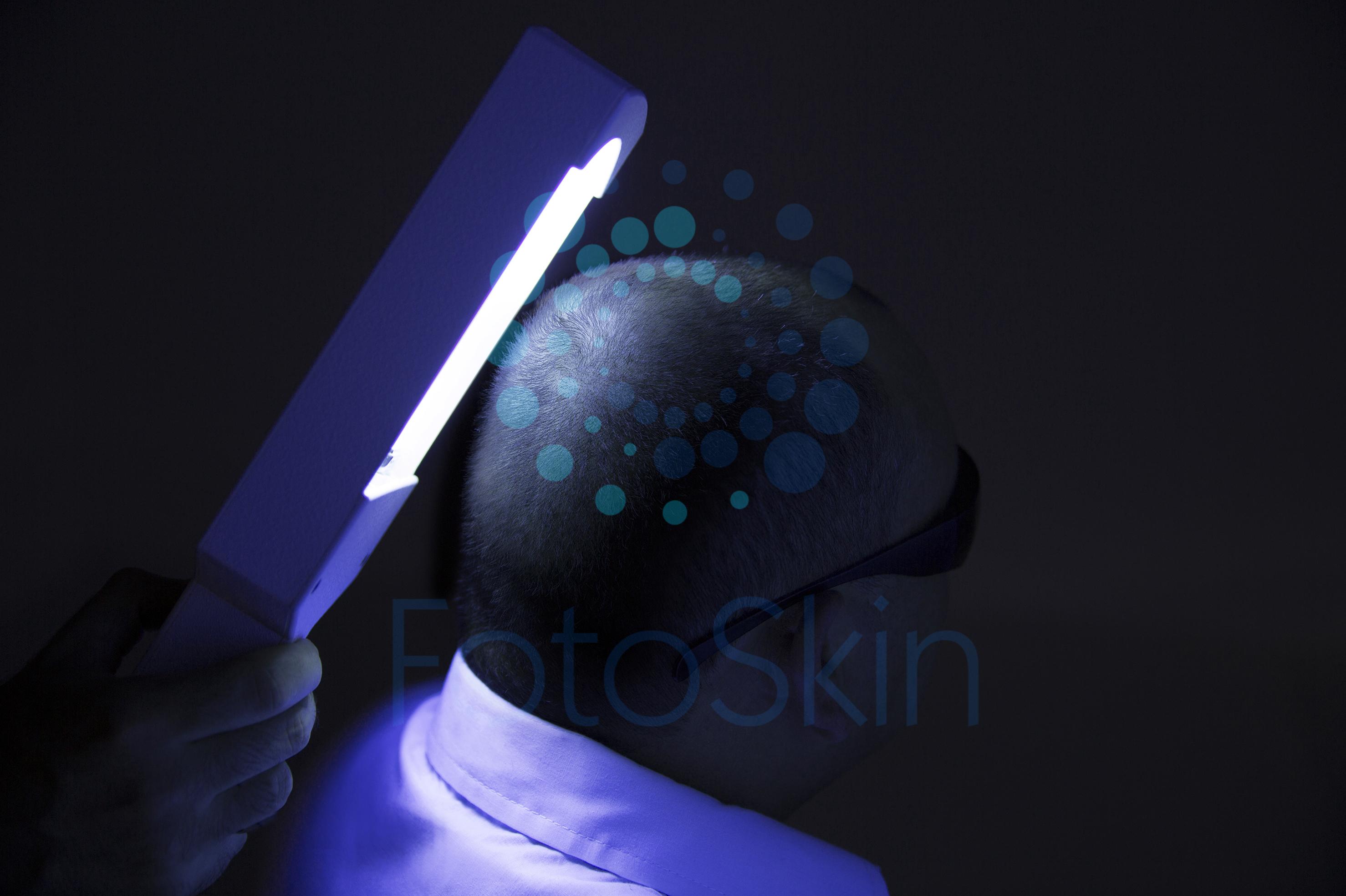 Fototerapia em domicílio UVB ou PUVA- um tratamento de luz
