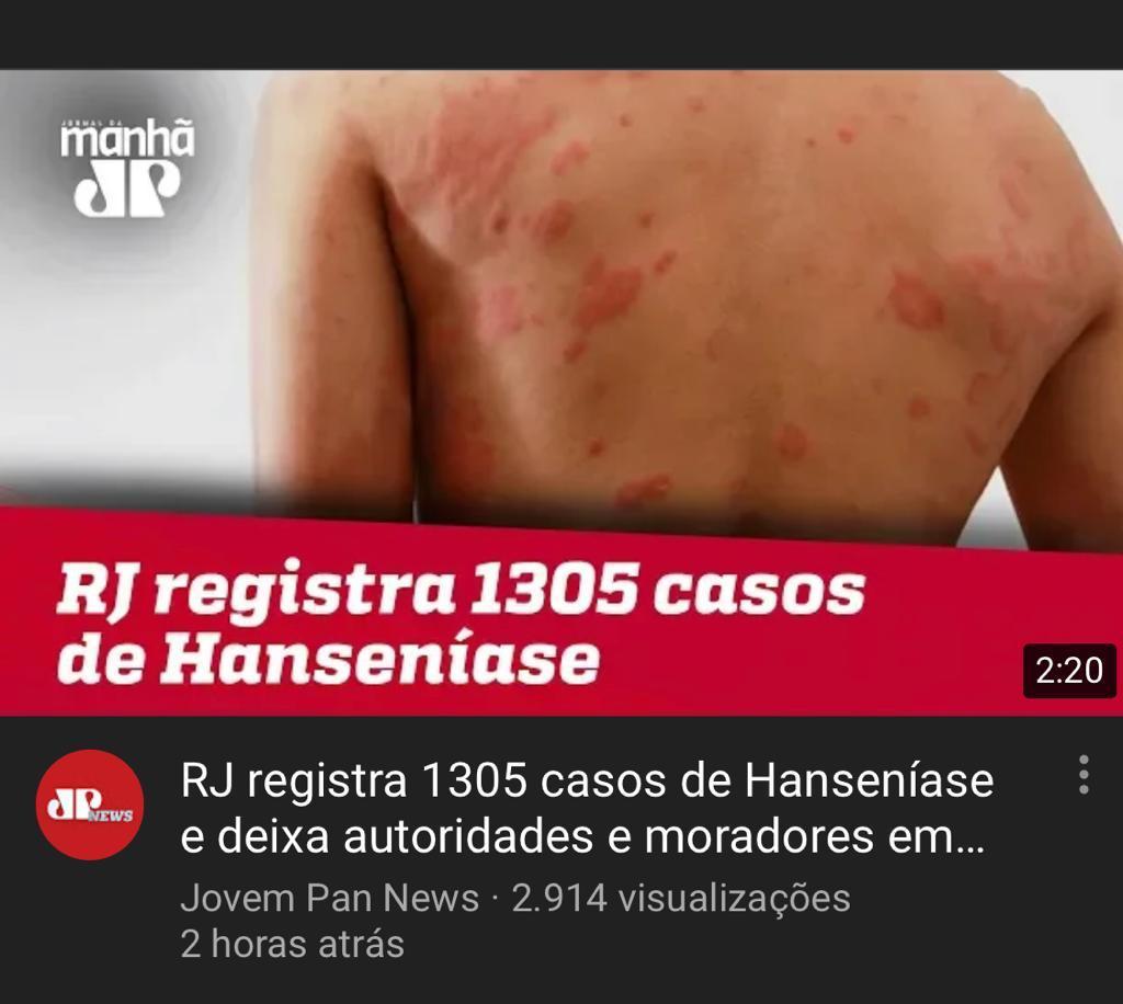 Lepra (Hanseníase) uma vergonha brasileira